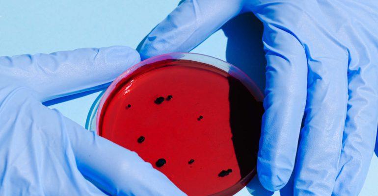 person-holding-petri-dish-3786217